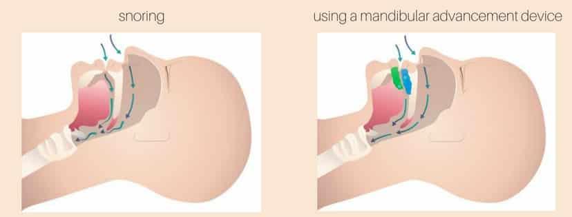 Mandibular advancement device for snoring